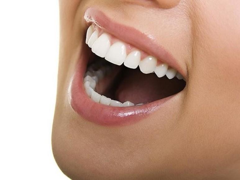 Lingual ortodonti ile diş teli takma kâbusu sona eriyor