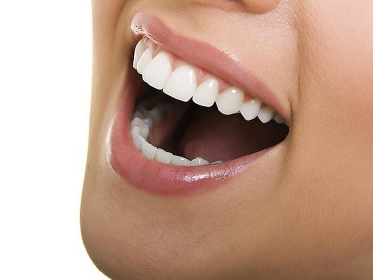 Lingual ortodonti ile diş teli takma kâbusu sona e...