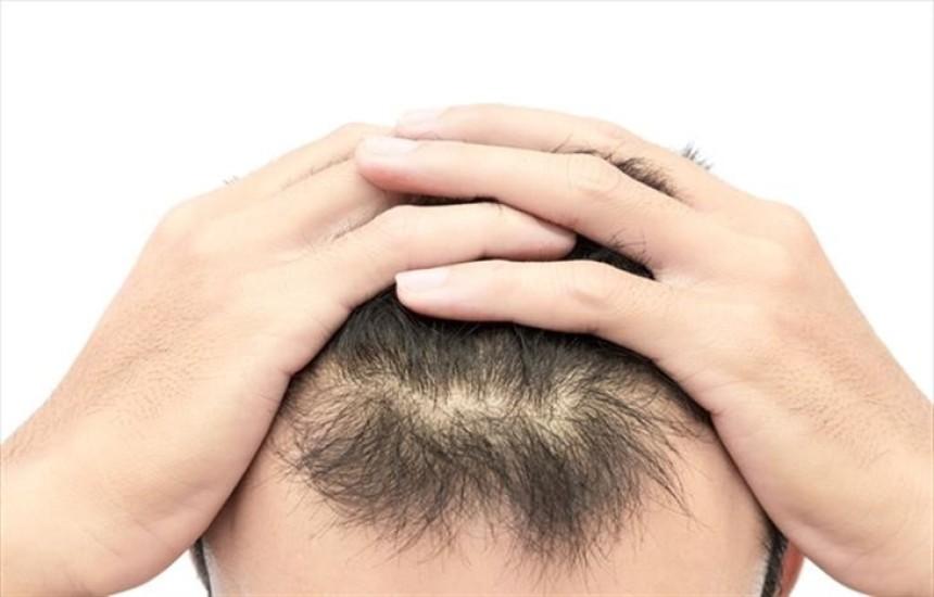 Mevsim değişiklikleri ve metabolizma hızı saç dökülmesinde etkili